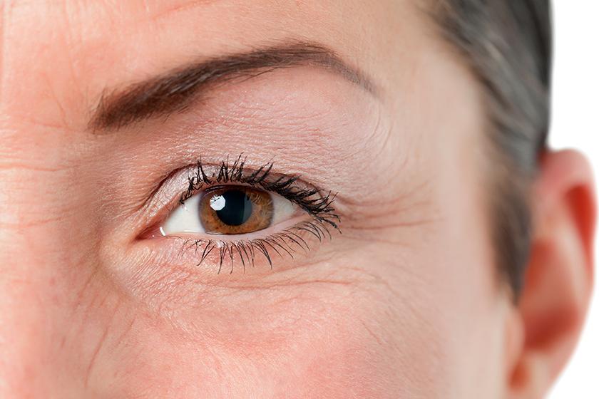 Bolsas Embaixo dos Olhos: O Que São e Como Tratar