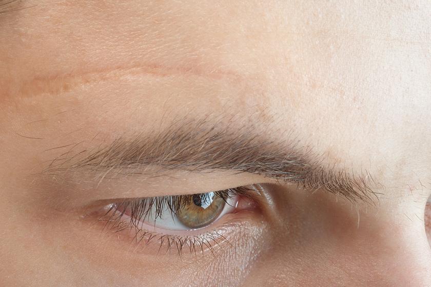Saiba como funciona o método de compressão no tratamento de cicatrizes